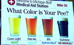 dehydration-color-chart